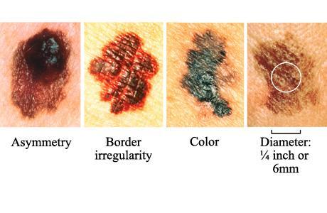 maligni melanom