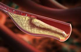 visok-holesterol-previsok-holesterol