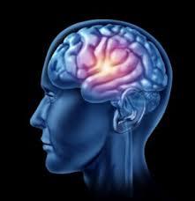 cvi mozganska kap