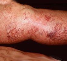flebitis.jpg