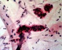 patologija.jpg