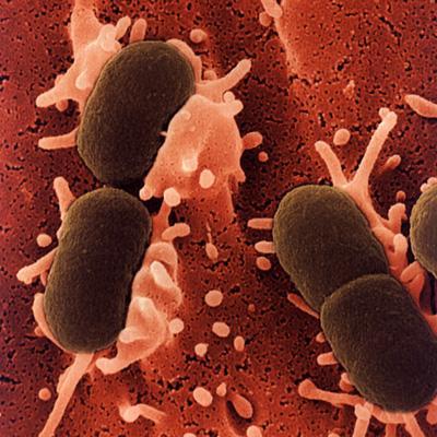 e.coli_