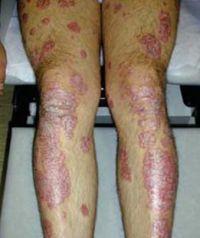 eflorescence-dermatologija