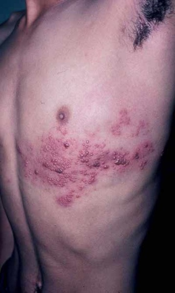 herpes-zoster