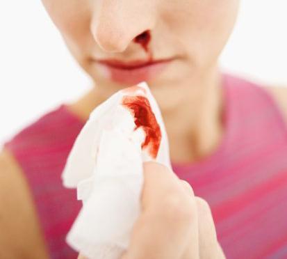krvavitev-iz-nosu