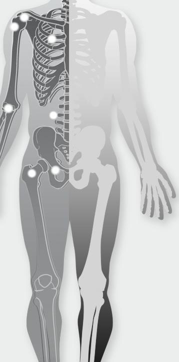ortopedija