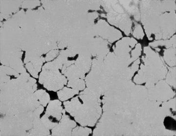 MIKROGLIJA-nevrologija