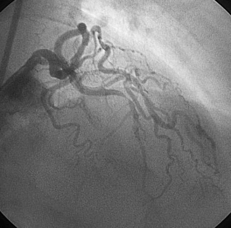 akutni-miokardni-infarkt