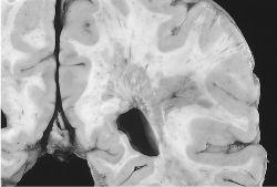 multipla-skleroza