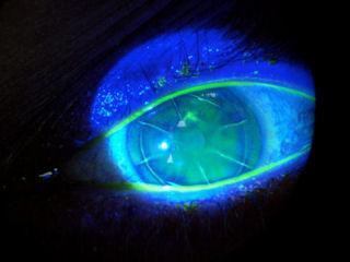 bio-mikroskop-oftalmologija