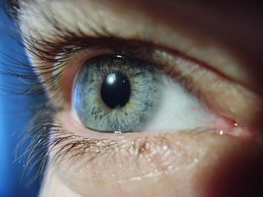 okulistika-oftalmologija