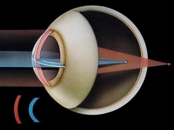 astigmatizem-okulistika