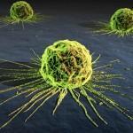 Zdravstvena nega onkološkega bolnika – zapiski 2012